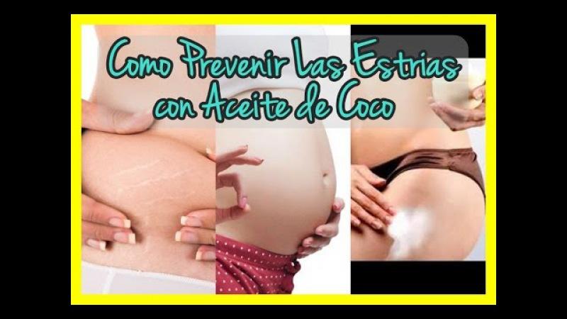 ❤ Como Prevenir Las Estrias,Aceite Coco,Como Borrar Estrias ❤
