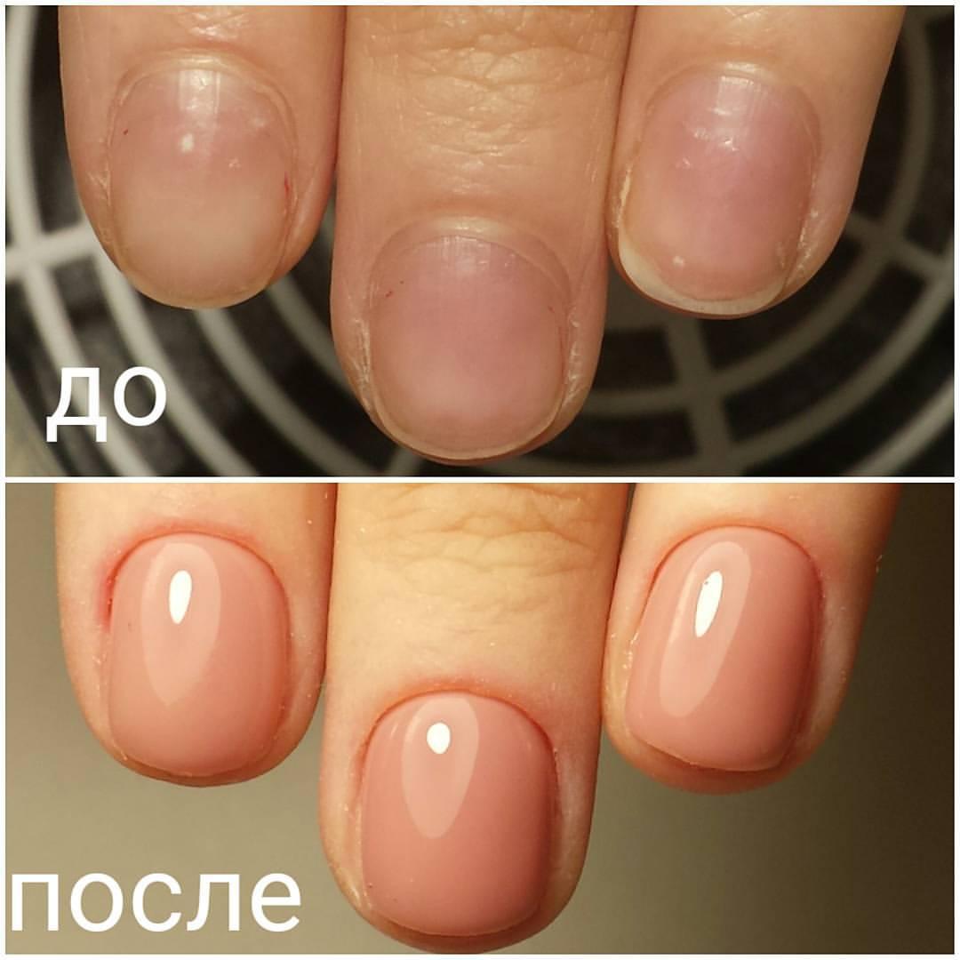 Лак на неровных ногтях фото