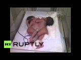Индия: Сиамские близнецы, рожденные в Агре.