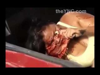 Просто Жесть! Женщине оторвало лицо!!! 21+