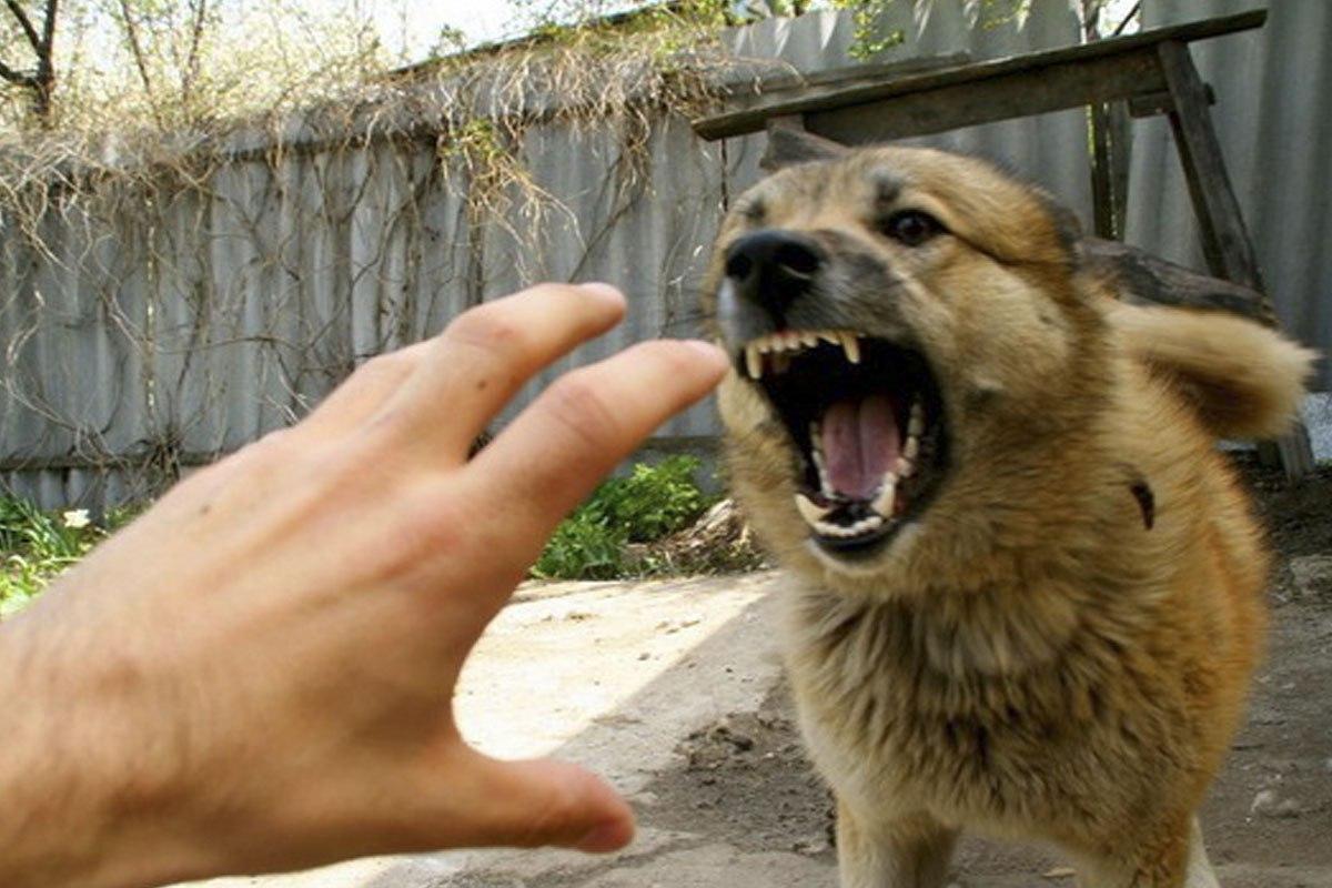 В Ростовской области бешеный пес напал на ребенка