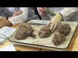 Анатомия. Слои стенки сердца. Перикард