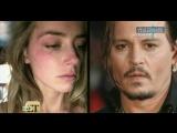 Жена Джонни Деппа Эмбер Хёрд обвинила его в избиениях (сюжет НТВ)