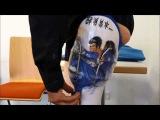 Genium-Prothese mit Boa-Schaft by Seifert Technische Orthop