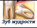 Что делать если болит зуб мудрости Лечение воспаления зуба мудрости Хирургическая стоматология