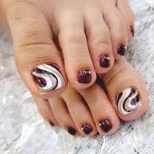 Лечении грибка ногтей народными средствами