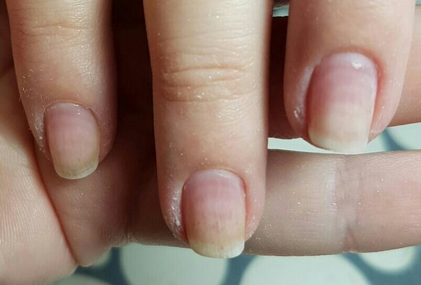 Бородавки под ногтями