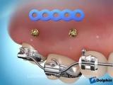 Mini implants I. Интрузия 6 ого.Ортодонтия.