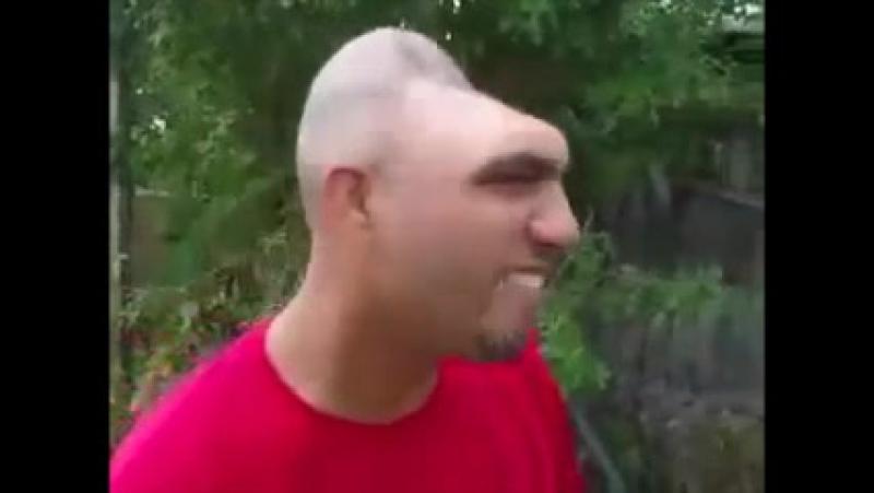 Mann mit halben Kopf (Wie viel Gehirn braucht der Mensch?)