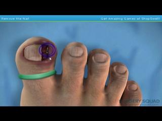 ▶ Симулятор удаления вросшего ногтя (Ingrown Toenail Surgery)