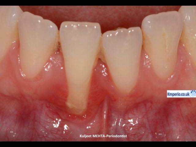 Gum (Gingival) Recession Surgery Treated with Gum Graft.