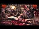"The Dark Prison Massacre - ""A Blood Clot Ejaculation"" (2015) {Full-Album}"