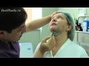 Лазерная липосакция в клинике Бьюти Доктор