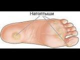 Как моментально удалить натоптыши на ногах http://c.cpl2.ru/6a6v