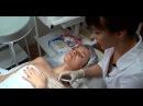 Биостимуляция кожи препаратом SKIN B. Без боли и следов!