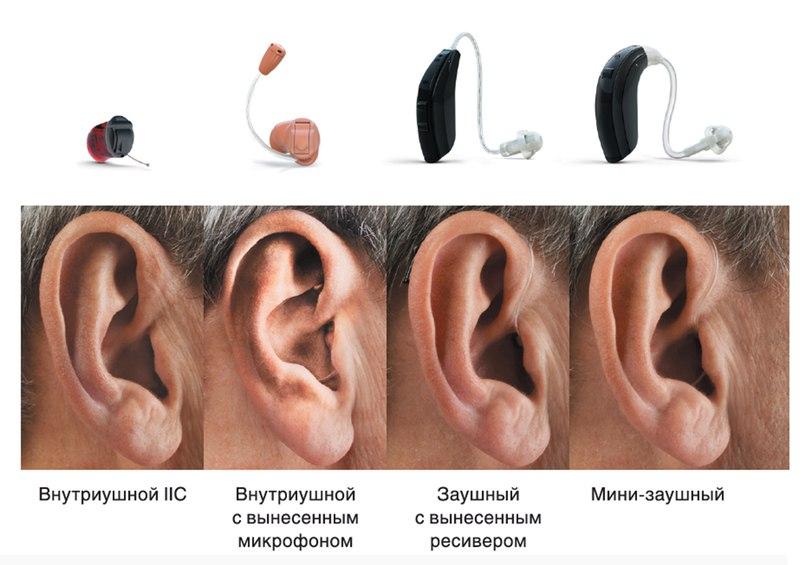 Линейка слуховых аппаратов ReSound Verso™, работающих по принципу бинауральной связи станет незаменимым приобретением для людей с нарушениями слуха различной степени