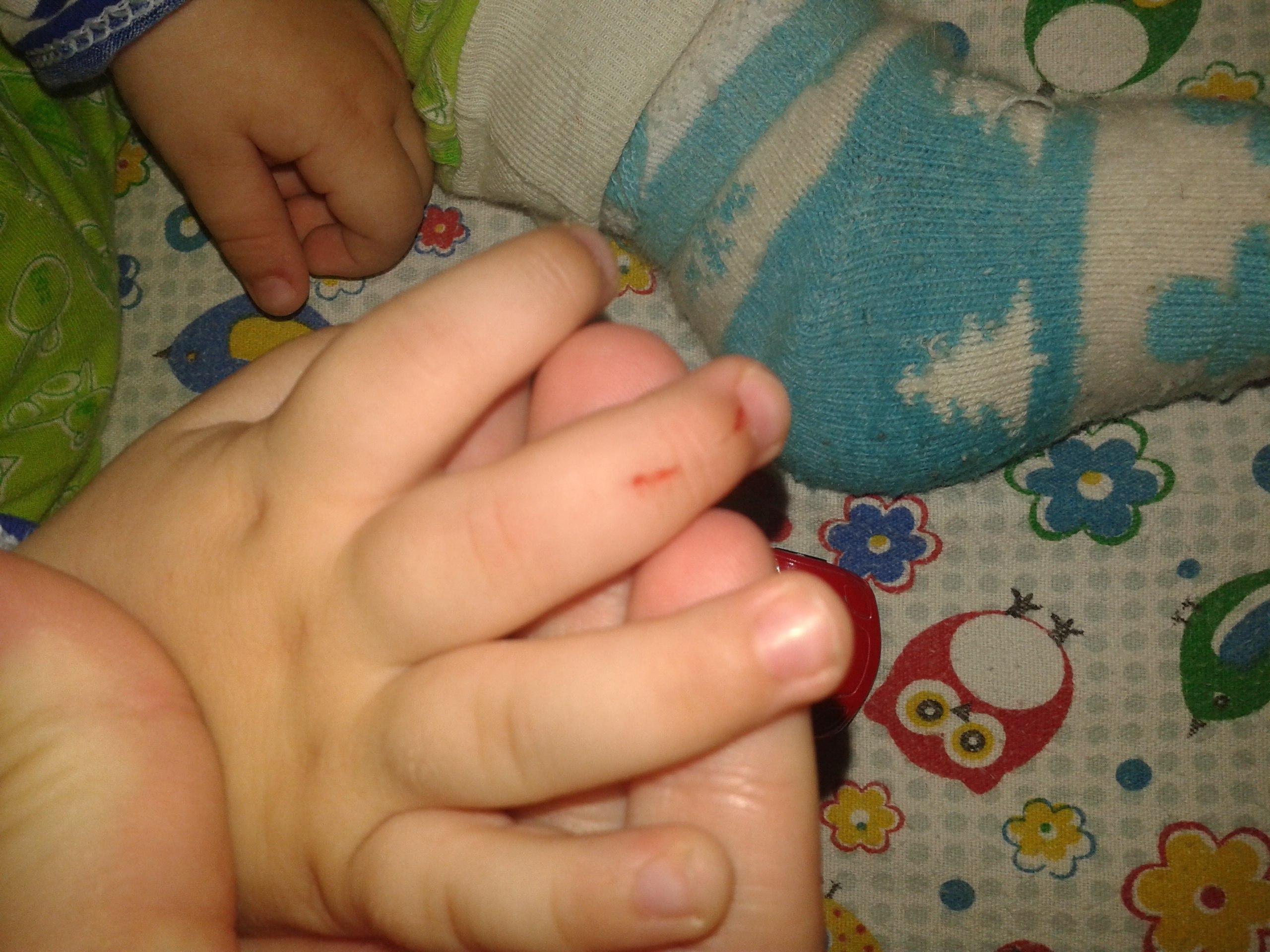 Прививка бцж у новорожденных гноится что делать фото