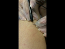 видео процесса работы по удалению волос навсегда!
