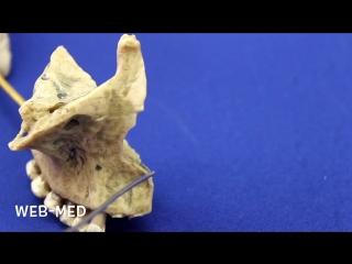 Верхняя челюсть (Maxilla) (1)