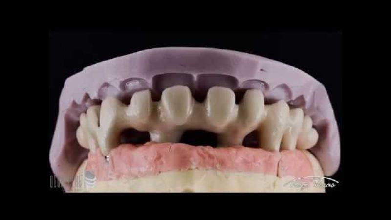 Prótese sobre implante - Protocolo cerâmico (técnica, procedimentos e resultado)