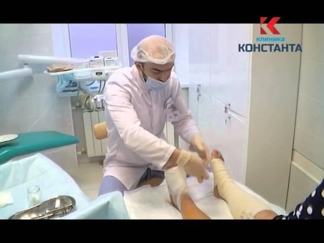 Перевязка стопы после остеотомии (Hallux Valgus)