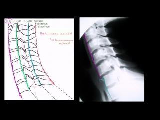 Оценка расположения шейного отдела позвоночника (шеи) на рентгеновских снимках в боковой проекции