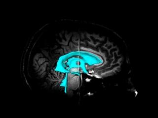 Желудочки мозга. Компьютерная графика.