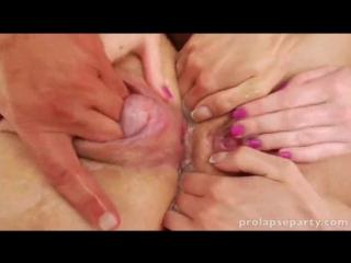 Hardcore anal lesbian session pussy spreading prolapse - 24/08/2016