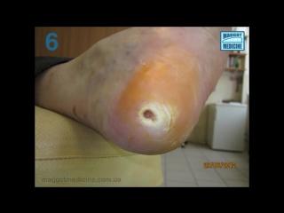 Лечение ран личинками. диабетическая стопа maggot debritment therapy. diabetic foot - hd720 [mp4]