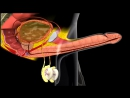 Erection and Ejaculation - 3D Medical Animation __ ABP © [720p]