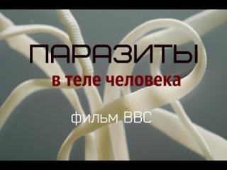 Паразиты в теле человека. Ошеломляющее видео от BBC