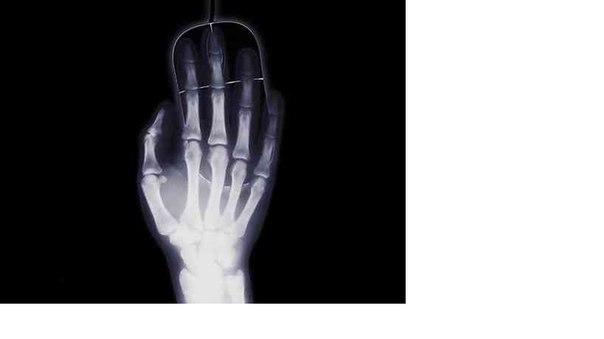 В России разработан уникальный метод 3D-печати костей