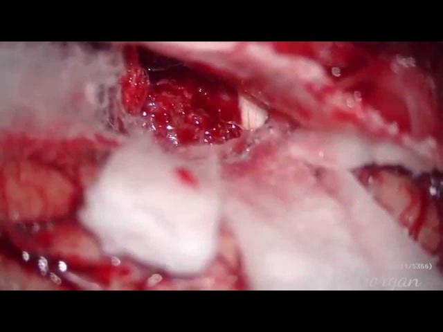 Операция Удаление менингиомы крыла основной кости