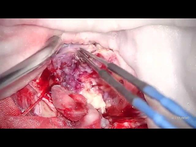 Операция Удаление парасагиттальной менингиомы головного мозга