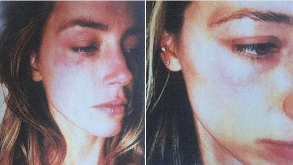 Эмбер Херд опубликовала новые фото, обвиняя Джонни Деппа в домашнем насилии