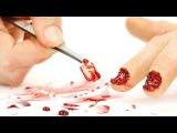 Грим: Пытки с ногтями