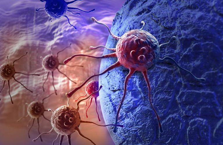 Отличие доброкачественной опухоли от злокачественной
