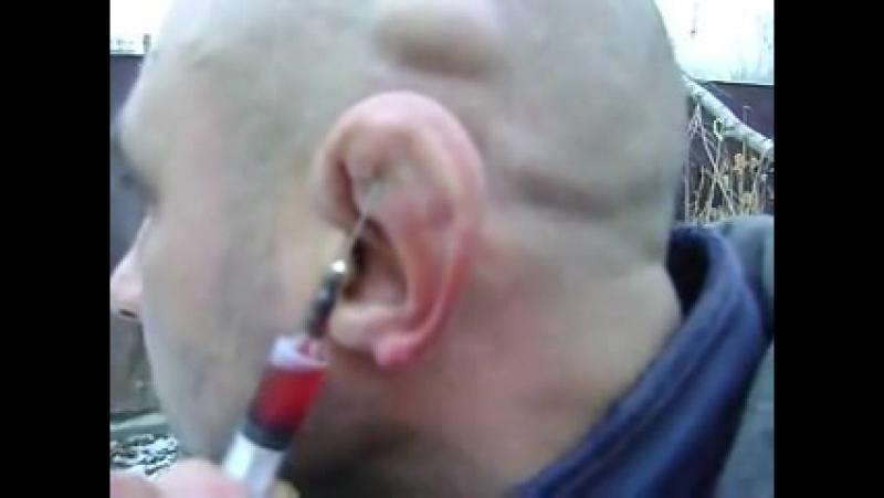 Как откачивать жидкость из сломанного уха
