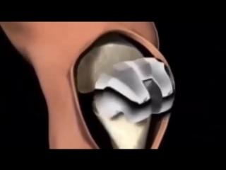 Как устанавливают коленный протез.
