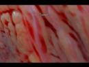 поверхность сердца в 3D увеличение х1000 раз