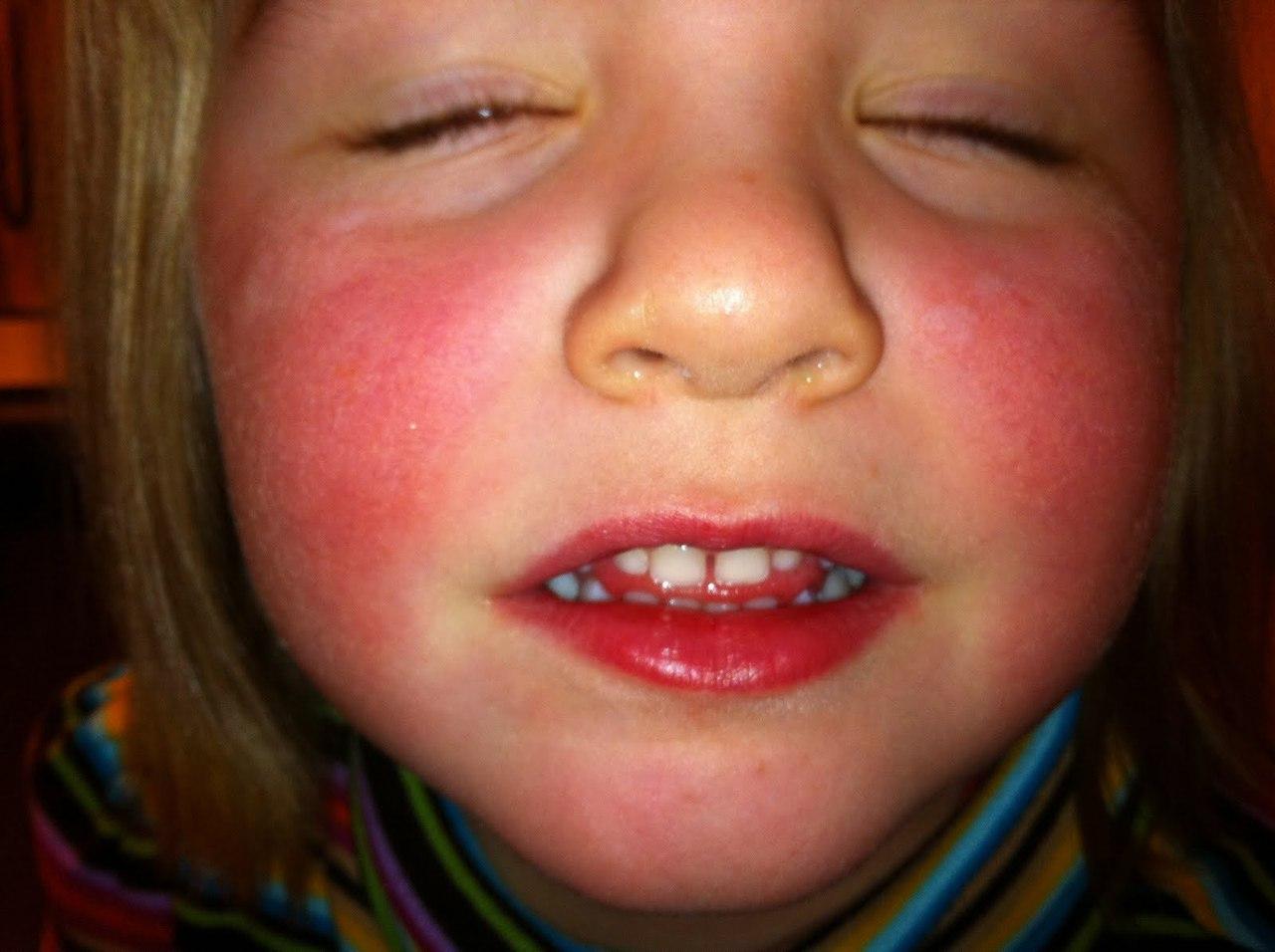 признаки скарлатины у детей фото сыпи