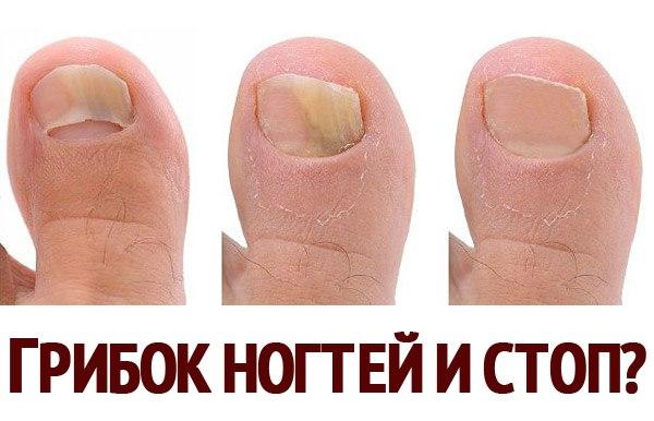 Лечение грибка ногтей от мясникова