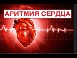 Аритмия сердца. Современный подход.