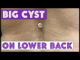 BIG cyst on lower back!