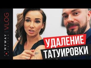 Удаление тату у Анфисы Чеховой и Элины Камирен