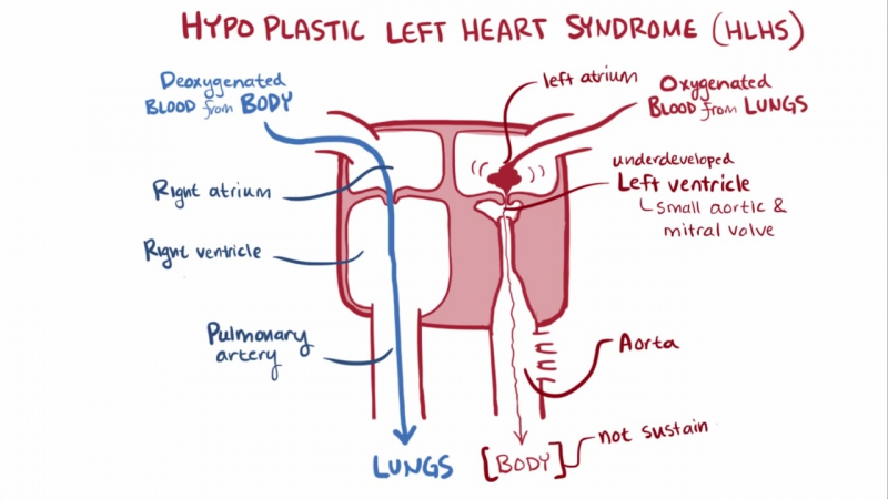 Hypoplastic left heart syndrome HLHS