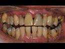 Как лечить пародонтоз и удалить зубной камень в домашних условиях