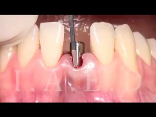Встановлення зубних імлантів Львів 098-72-72-732
