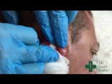 Drainage of Infected Epidermal Cyst Lobule of Ear