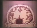 Череп декомпрессионная трепанация по Кушингу © Decompression craniotomy for Cushing